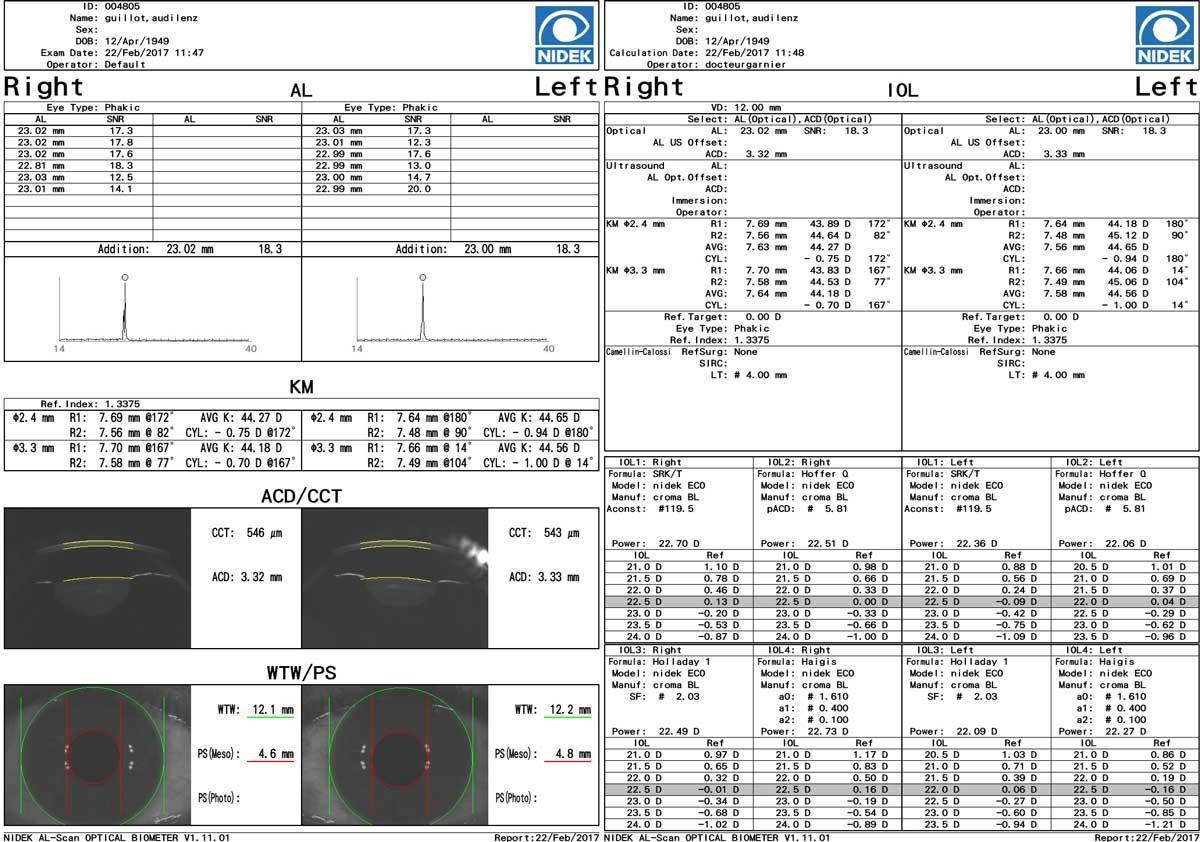mesure biométrie nidek bilan cataracte opération chirurgie